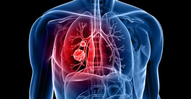 lung-cancer-fb